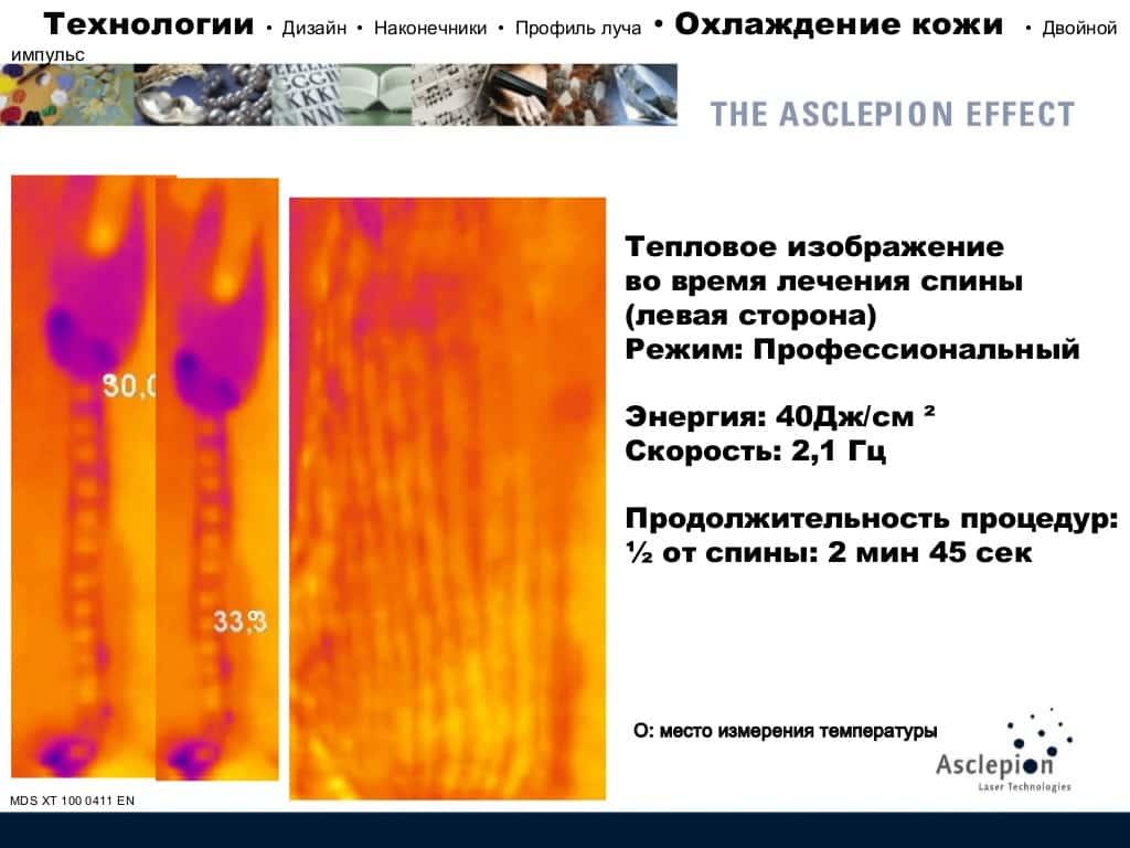 Диодный лазер MeDioStar NeXT
