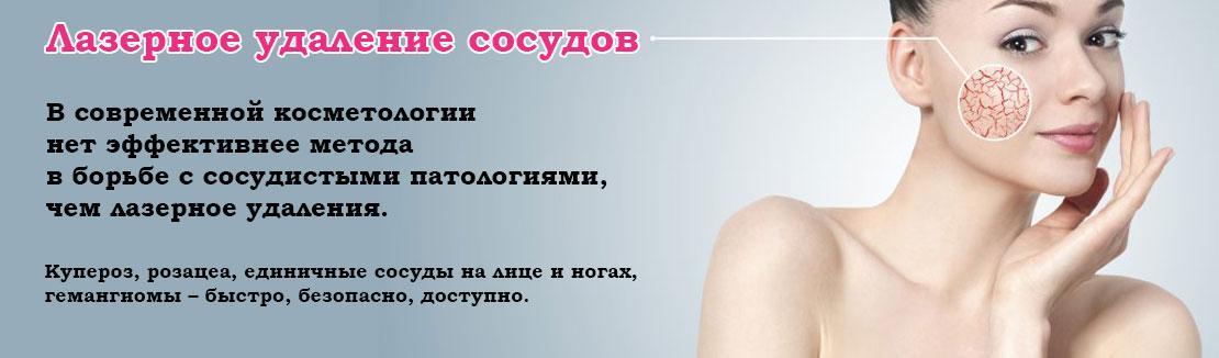 Лазерное удаление сосудов кожи в Одессе