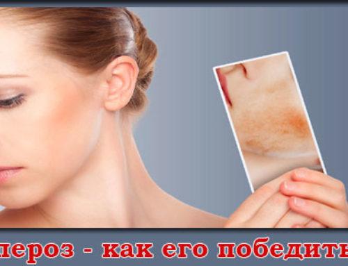 Что такое купероз и как избавиться от купероза