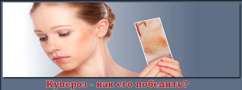 Что такое купероз и как избавиться купероза